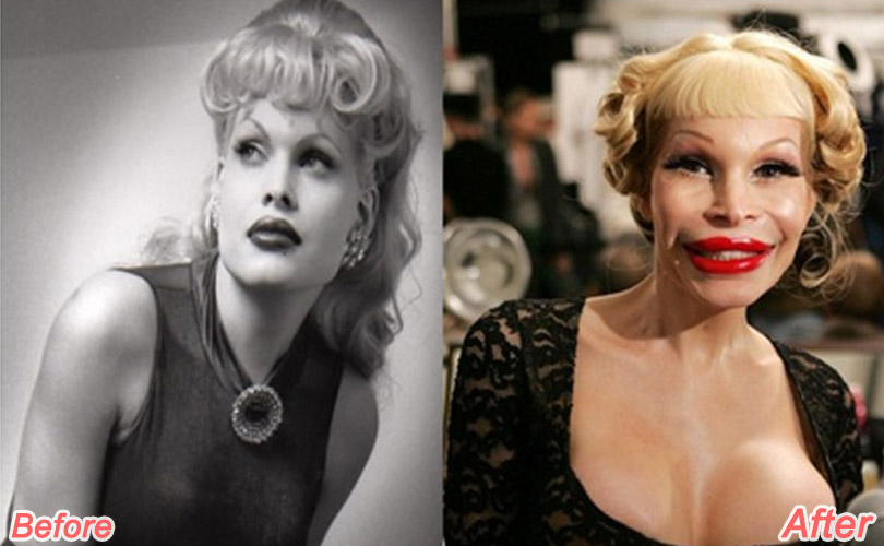 amanda-lepore-before-after-plastic-surgery