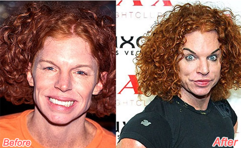 Before after plastic surgery celebrity pictures of red
