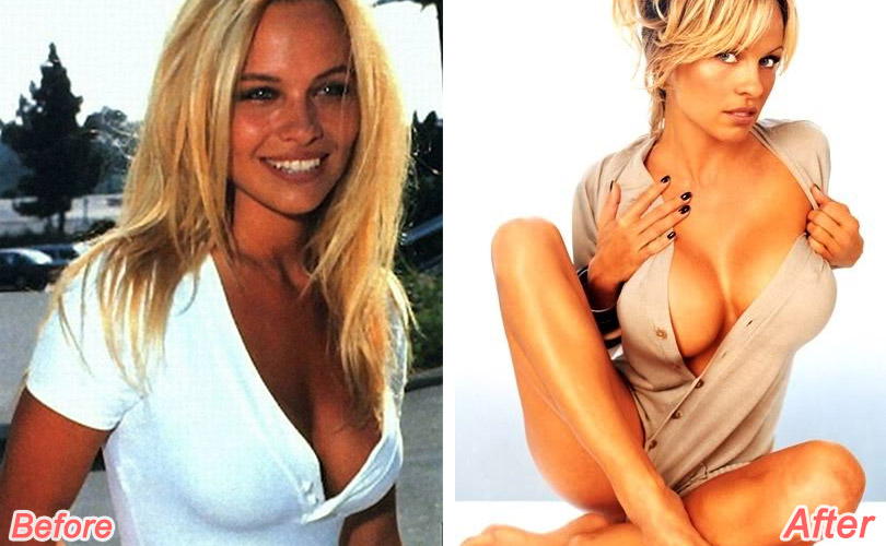 pamela-anderson-before-after-plastic-surgery