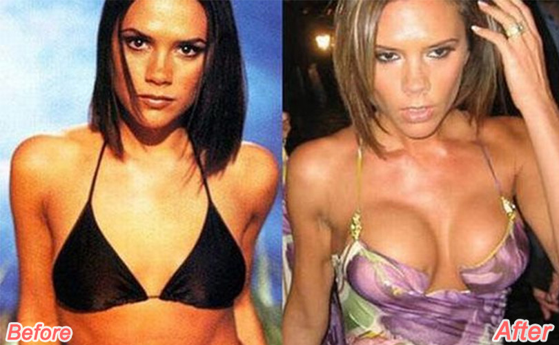 victoria beckham before after plastic surgery
